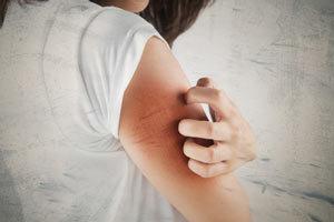 i i nat rliche antihistaminika histamin intoleranzen histamin allergien. Black Bedroom Furniture Sets. Home Design Ideas